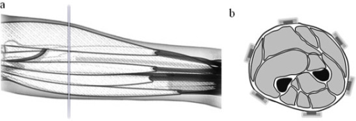 Electrode positions. Schematic views of the position of the electrodes: (a) lateral, (b) transversal.