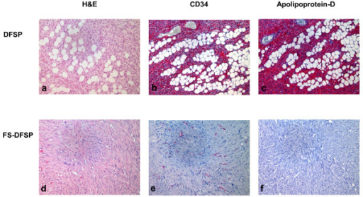 Histology. Bland appearing spindle cells arranged in monotonous storiform pattern, infiltrating between lobules of fat in an honeycomb pattern in DFSP (H&E; panel a). CD34 (panel b) and Apolipoprotein-D (panel c) expression in DFSP. Malignat fibrous histicitoma-like areas in DFSP (DFSP-FS) (panel d). Loss of expression of CD 34 (panel e) and Apolopoprotein-D (panel f).