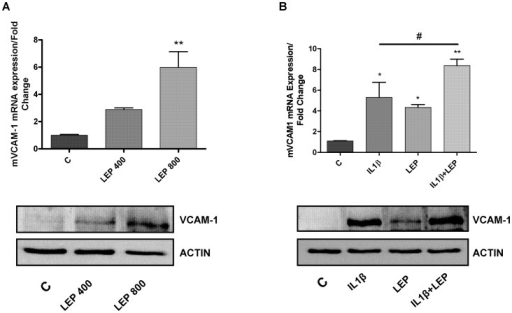 Determination of mVCAM-1 mRNA and protein expression by quantitative real-time PCR and western blot.A. mVCAM-1 expression after leptin (400 and 800 nM) treatment in ATDC-5 cell line, during 24 hours. B. mVCAM-1 mRNA expression after IL-1β (10 ng/ml), leptin (800 nM) and the combination of IL-1β (10 ng/ml) plus leptin (800 nM) challenge in ATDC-5 cell line, during 24 hours.