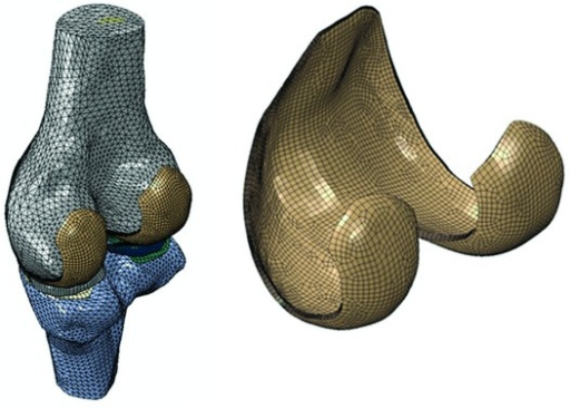 Finite element model of the tibiofemoral joint, showing the distal femur, proximal tibia, menisci, and femoral and tibial cartilages. The tibial cartilage on the medial side is essentially covered by the medial meniscus (right knee, medial side shown on the left of the figure). The femoral cartilage is further shown with 8 layers of elements.