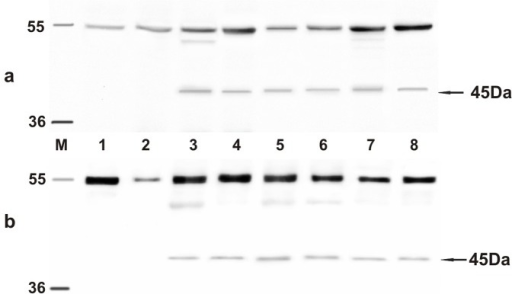 E2 expression.The presence of E2 protein detected by Western blot. a) Lanes 1–2: urinary bladders from healthy cows. Lanes 3–7: urinary bladder tumors from five of twenty cows. Lane 8: positive control, (bovine placenta infected with BPV-2). b) Lanes 1–2: urinary bladders from healthy buffaloes. Lanes 3–7: urinary bladder tumors from five of twenty-one buffaloes. Lane 8: positive control, (bovine placenta infected with BPV-2).