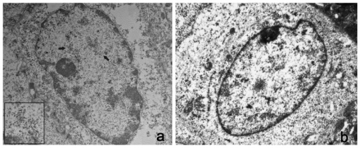 Presence of viral particles in bovine urothelial cells.A) Electron microscopical examination showed numerous intranuclear electron dense particles, 45–50 nm in diameter (black arrows). X 15,000. The size and shape of these particles are consistent with the submicroscopic features of viral particles (insert). X 50,000. B) Normal urothelial cells. No electron dense particles are detected in the nucleus of a normal urothelial cell. X 15,000.