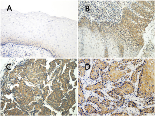 Immunohistochemical staining of USP9X expression in the progression from normal epithelium to ESCC. Paraffin-embedded tissue sections were stained using an immunoperoxidase method, as described in Materials and methods. Representative images (200×) are shown: A In normal esophageal epithelium, immunostaining for weak USP9X signal was found only in the basal layer. B In low grade intraepithelial neoplasia (left side), positive staining was observed in most of the heterogeneous cells from the basal layer to the granular layer of epithelium. The USP9X expression increased gradually in the transformation from low grade intraepithelial neoplasia to high grade intraepithelial neoplasia as carcinoma in situ in which the full-thickness epithelium showed diffuse immunoreactivity for USP9X (right side). C, D In ESCC, intense immunostaining for USP9X was presented in the cytoplasm of most of the cancer cells.