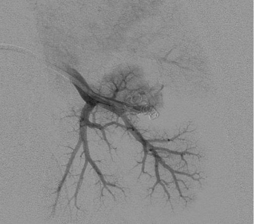 Postembolization pulmonary arteriogram demonstrates complete occlusion of the pulmonary arteriovenous malformation.