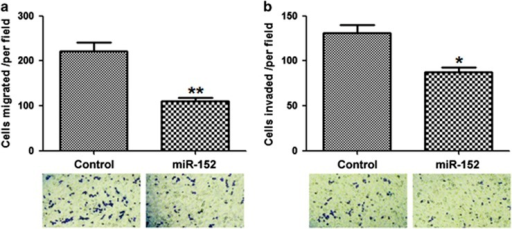 MicroRNA-152 (miR-152) suppressed the migration and invasion of non-small-cell lung cancer (NSCLC) cells. (a) A549 cells were transfected with miR-152 or control mimics, and in vitro migration was assessed. (b) In vitro invasion assay. *P<0.05, **P<0.01 vs control.