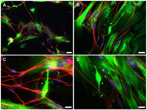 Immunofluorescence microscopy images of OL-like cells derived from hUCM-MSCs in co-culture with mouse dorsal root ganglion (DRG) neurons.The co-cultures were stained using an anti-human Golgi antibody (green) to specifically identify the human cells (OL-like cells derived form MSCs) and an anti-beta-III-tubulin antibody (red) to label the mouse DRG neurons. The images acquired in the green channel (anti-human Golgi antibody) were deliberately slightly overexposed to allow for a better understanding of the cellular morphology, which did not affect the identification of human versus mouse cells, as evidenced by the lack of green signal in the mouse DRG neurons (in red). Counterstaining of the nuclei was performed using DAPI (blue). It was apparent that the OL-like cells and DRG neurons tend to cluster together, as illustrated in a lower magnification image (A). Higher magnification images (B-D) suggest the existence of contact points (arrows) between branches of OL-like cells displaying an immature oligodendrocyte-like morphology (asterisks) and neurites. Scale bars correspond to 50 µm (A) or 20 µm (B-D).