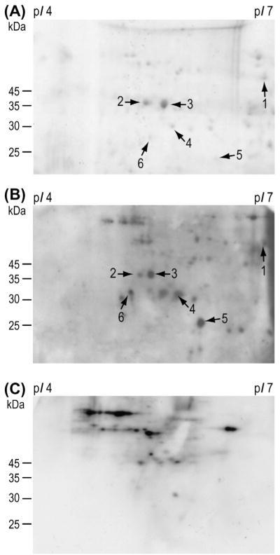 Identification of immunoreactive proteins from T. solium cysticerci by 2-DE Western blot analysis. (A) A 2-DE gel stained with Coomassie blue, showing soluble cysticerci proteins with pI values in the range 4–7. (B) Corresponding Western blot probed with serum from a patient diagnosed with NCC. (C) Corresponding Western blot probed with serum from a control subject. Arrows indicate the proteins that were isolated and sequenced (Table 1).