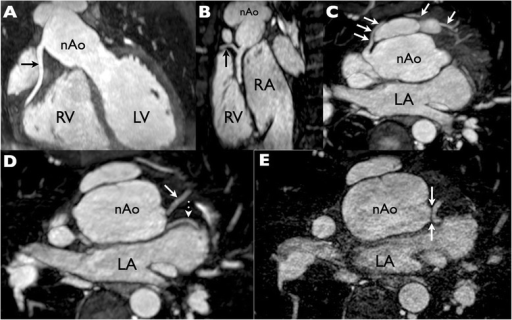 Whole heart coronary magnetic resonance angiography (MRA) at 1×1×1 mm resolution with multiplanar maximum intensity projection reformats to demonstrate the coronary arteries. (A) The right coronary artery (RCA) is seen to have a normal origin and course. (B) Excellent image quality is evident from the depiction of a small RCA marginal branch (arrow). (C) A large conal branch (arrows) takes a pre-pulmonic course and anastomoses with the left coronary system at the apex. (D, E) The left anterior descending (D solid arrow) and left circumflex (D dotted arrow) coronary arteries are shown in their proximal portions. Although the bifurcation of these vessels is clearly depicted, note that the left main coronary artery is not visible and that there is a'gap' between the aortic root and the LAD/Cx bifurcation even on ultrahigh resolution (0.5 × 0.5 × 0.5 mm) MRA (E arrows). This was misinterpreted as an occlusion of the left main segment as the diagnosis of single coronary artery had not been recognized. RV = right ventricle; LV = left ventricle; nAo = neo-aorta; RA = right atrium; LA = left atrium.