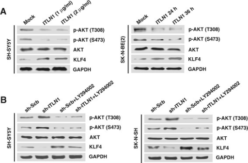 ITLN1 facilitates the expression of KLF4 via inactivation of PI3K/AKT signaling. (A) Western blot showing the phosphorylation of AKT (T308 and S473) and expression of KLF4 in solvent (mock)- or recombinant ITLN1-treated SH-SY5Y (1 and 2 μg/ml for 24 hrs) and SK-N-BE(2) (1 μg/ml for 24 and 36 hrs) cells. (B) Western blot showing the phosphorylation of AKT (T308 and S473) and expression of KLF4 in NB cells stably transfected with sh-Scb or sh-ITLN1, and those pre-treated with LY294002 (10 μmol/L).