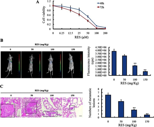 Resveratrol inhibited the metastasis of colorectal cancer LoVo cells in vitro and in vivo imaging by tail vein injection. (A) Correlation of resveratrol drug concnetrations (0, 6.25, 12.5, 25, 50, 100, 200 μM) and cell viability in LoVo cells for 48 h and 72 h. (B) LoVo-pLV4-GFP cells were respectively injected into the lateral tail vein. One week later, resveratrol was administrated with the concentration of 0, 50 mg/Kg, 100 mg/Kg, 150 mg/Kg every day for 3 weeks. Seven weeks later, the established lungs metastases images were observed by LB983 NIGHTOWL II system. (C) The organs of lung were excised, and the metastasis was checked by hemaoxylin-eosin staining, and the numbers of metastatic lesions were counted. **P < 0.01, compared with LoVo-pLV4-GFP cells without treatment of resveratrol.