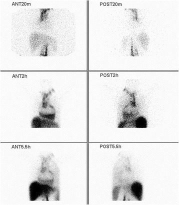 Lymphoscintigraphy. The local images were collected after injecting Tc-99 m antimony sulfide colloid 20 minutes, 2 and 5.5 hours. Lymphoscintigraphy demonstrates the marked dilatation of the upper of alimentary duct and the increased uptake in the pericardium