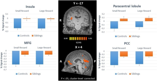 Inner panel: Group differences during anticipation of reward (ANCOVA; N = 151) depicted on an anatomical scan of one of the control participants (p < 0.05, cluster-level corrected). Outer panel: The difference in percent signal change between small and large rewards in these regions for siblings (N = 94) and controls (N = 57). MFG, medial frontal gyrus; PCC, posterior cingulate cortex.