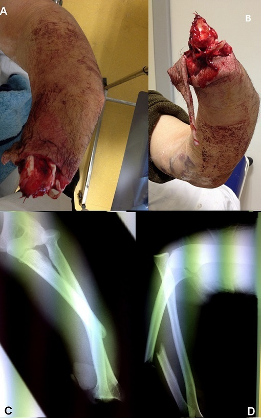 (A and B) clinical features in patient at admission showing wrist disarticulation with a deformition of the elbow and forearm; (C and D) radiography objectified a Monteggia fracture-dislocation with a radiocarpal amputation of wrist-joint