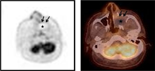 Integrated 18F-FDG-PET/CT images show moderate uptake only at the peripheral rim (black arrows) of the mass with negative FDG uptake in the central portion (asterisk). The maximum standardized uptake value (SUVmax) of this lesion is 3.80. Other signs of abnormal uptake suggesting a malignant lesion are not observed.