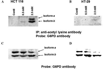 Aspirin-mediated acetylation of glucose-6-phosphate dehydrogenase (G6PD) is greater in (A) HCT 116 cells compared with in (B) HT-29 cells. Subconfluent cells were left untreated or were treated with aspirin for 24 h, lysates were prepared, and equal amounts of protein were immunoprecipitated with rabbit agarose-conjugated anti-acetyl lysine antibody. Agarose-bound proteins were eluted and immunoblotted with anti-G6PD antibody. (C) HCT-116 and (D) HT-29 samples were immunoblotted with anti-G6PD antibody. The experiments were repeated three times.