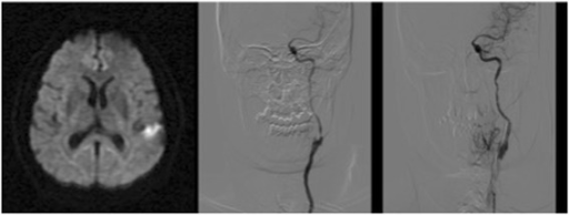 Diffusion MR Image showing hemispheric left focal hyperintensity area after the symptomatology and angiographic images showing left extracranial ICA critical stenosis before and after endovascular recanalization