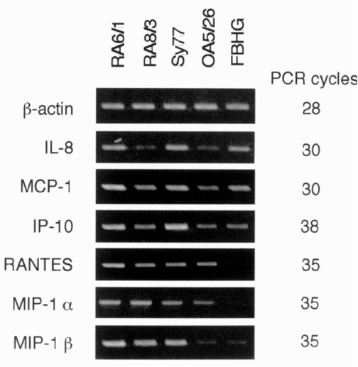 Chemokine mRNA expression by various cell lines. Chemokine mRNA expression was examined with RT-PCR. PCR products were separated in 1.5% agarose gels and analyzed after ethidium bromide staining. Each PCR was performed using 0.1 μl cDNA sample and the number of PCR cycles indicated. RA6/1, RA8/3, and Sy77 are RA SCLs, OA5/26 is a SCL from OA, and FBHG is a skin fibroblast line.