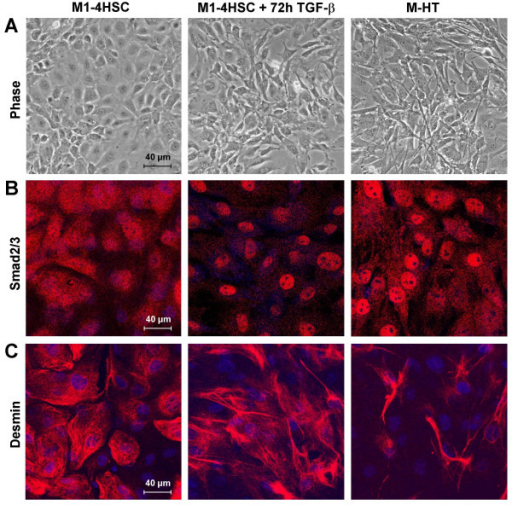 Cellular model of hepatic fibrosis. (A) Morphological changes of M1-4HSCs treated with TGF-β1 either for 72 hours or for long-term (myofibroblastoid M-HT) as analyzed by phase contrast microscopy. (B) Nuclear translocation of Smad2/3 as visualized by confocal immunofluorescence analysis. (C) Confocal immunofluorescence images after staining of cells with anti-desmin antibody.