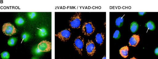 Inhibition of GraB-induced apoptosis and cytochrome c by caspase peptide inhibitors. (A) HeLa cells preincubated with peptide  caspase inhibitors zVAD-FMK, YVAD-CHO,  DEVD-CHO, or FA-FMK at the indicated concentrations were treated with GraB (2 μg/ml)  and perforin (80 ng/ml) for 2.5 h and the apoptotic nuclei were counted after Hoechst staining.  •, zVAD-FMK; ▾, YVAD-CHO; ▪, DEVD-CHO; ♦, FA-FMK. (B) HeLa cells treated with  GraB (2 μg/ml) and perforin (80 ng/ml) for 1.5 h  were preincubated in zVAD-FMK (40 μM; center panel), DEVD-CHO (100 μM; right panel),  or medium control (left panel) then stained as in  Fig. 5. The images show an overlay of the mitochondrial stains Mitotracker (green), cytochrome  c (red), and Hoechst (blue). Coincidence of cytochrome c and Mitotracker shows as yellow. Note that cells treated with DEVD-CHO have no evidence  of chromatin condensation (white arrows), yet cytochrome c no longer colocalizes with Mitotracker. Cells treated with YVAD-CHO (100 μM) were  identical to zVAD-FMK–treated cells (not shown). The concentrations of inhibitory peptide noted above inhibited apoptosis by 70% as determined in A.  (C) HeLa cells were treated with perforin alone (lanes 2 and 9) or GraB (2 μg/ml) and perforin (80 ng/ml; lanes 3–5, 9–11, and 14–16), staurosporine (1 μM;  lanes 6 and 12), or medium (lanes 1, 7, and 13) for 2.5 h. GraB- and perforin-treated cells were also preincubated in zVAD-FMK (40 μM; lanes 5, 11,  and 15), YVAD-CHO (100 μM; lane 16), or DEVD-CHO (100 μM; lanes 4 and 10) peptide inhibitors, control peptide FA-FMK (100 μM; lane 17),  or medium (lane 13) and cytochrome c in the S100 cytosolic fraction (lanes 7–17) and in the mitochondria-containing fractions assessed by Western blotting (lanes 1–6). The doses of each inhibitory peptide reduced apoptosis by 70% (see A).