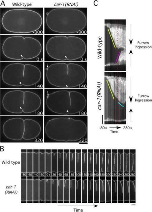 Disruption of cleavage furrow ingression in CAR-1–depleted embryos. (A) Selected panels from time-lapse sequences of wild-type (left column) and CAR-1–depleted (right column) embryos expressing GFP:PHPLC1δ1, which localizes to the plasma membrane. Time in seconds after initiation of furrowing is indicated in the lower right corner of each panel. (See also Video 5.) Bar, 10 μm. Arrows highlight the failure of polar body extrusion. Arrowheads point to secondary furrow, which fails to ingress in CAR-1–depleted embryos. (B) Same as in A, except only a 7.3-μm wide vertical section containing the furrow is shown for each time point. Bar, 5 μm. (C) Kymographs of the regions shown in B, comparing furrow ingression in wild-type and CAR-1–depleted embryos (see Methods and materials for details on kymograph construction). The slope of the yellow line indicates the initial rate of primary furrow ingression, which is identical in wild-type and CAR-1–depleted embryos. In wild-type embryos, the primary furrow encounters the midbody and ceases to ingress (time indicated by red dashed line). At a similar time in CAR-1–depleted embryos, the primary furrow slows (cyan line) but does not stop. In wild-type embryos, a secondary furrow begins to ingress from the opposite side of the embryo (pink line) as the primary furrow ceases its inward movement. In CAR-1–depleted embryos, no ingression of a secondary furrow is observed. Bar, 5 μm.