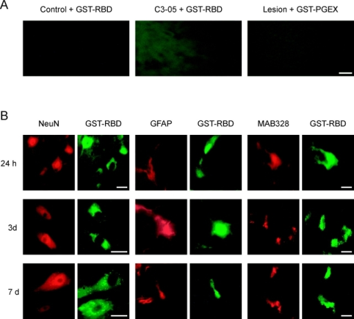 Rho is active in neurons and glial cells after SCI, detected by in situ pull-down assay. (A) Control uninjured animals (control + GST-RBD) and C3–05 treatment of animals after SCI (C3–05 + GST-RBD) probed with GST-RBD show no active Rho. Sections of animals after SCI incubated with lysate from empty pGEX vector expressing only GST protein (lesion + GST-pGEX) show only background levels of GST in the spinal cord and no active Rho. Bar, 50 μm. (B) Double labeling of spinal cord with cell type–specific markers (red) and GST antibody to detect GST-RBD (green). At all time points tested (24 h, 3 d and 7d), GTP-Rho was detected in neurons (NeuN), astrocytes (GFAP), and oligodendrocytes (MAB328) after SCI. Bars, 50 μm.