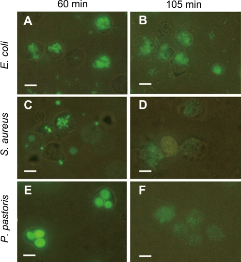 Phagocytosis of E. coli, S. aureus and P. pastoris by macrophages.Vg, FITC-labeled microbes and macrophages freshly isolated were mixed and incubated together at room temperature. The controls were performed in the presence of BSA instead of Vg and in the absence of Vg. Phagocytosis was observed at 60 min after mixing macrophages with microbes. (A, C and E) Phagocytosis of E. coli, S. aureus and P. pastoris by macrophages at 60 min; (B, D and F) Phagocytosis of E. coli, S. aureus and P. pastoris by macrophages at 105 min. Scale bars: 10 µm.