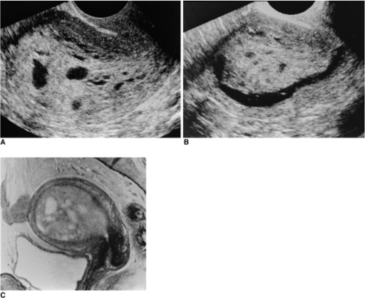 A 45 year-old woman presented with abnormal uterine bleeding.A. Longitudinal image of transvaginal ultrasonography shows an extremely thickened endometrium and multiple cystic portions in the mass.B. Longitudinal image of hysterosonography shows a huge endometrial tumor, which was regarded as a polyp.C. T2-weighted sagittal image of the uterus shows about a 9 cm sized heterogeneous hyperintense mass confined in the endometrial cavity. Hysteroscopic removal was done and the diagnosis of endometrial polyp was confirmed in pathology.