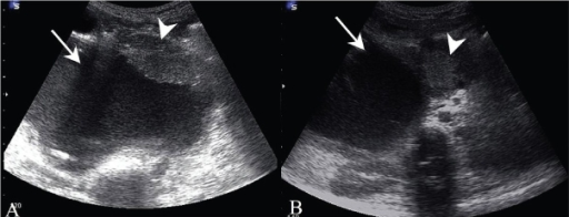 Transverse subcostal USG (A) through the right upper quadrant shows a large cyst (arrow) with eccentric, lobulated soft tissue (arrowhead) along the anterior wall and with debris along the posterior wall. A transverse epigastric scan (B) demonstrates a rounded mass (arrowhead) in the region of the pancreatic head, medial to the large subhepatic cyst (arrow)