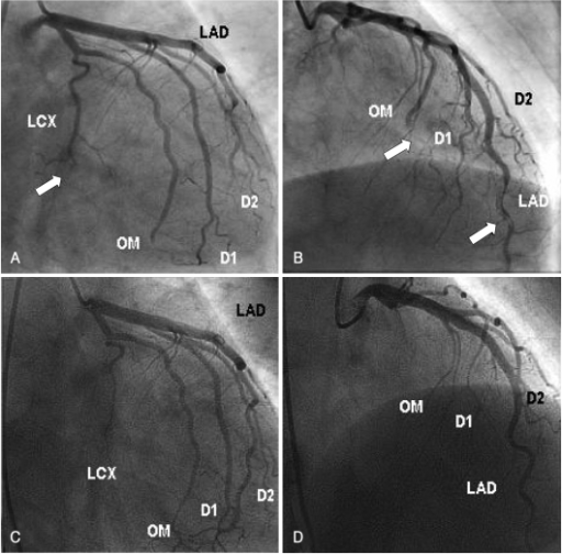 Coronary angiography finding. A and B: after administration of glycoprotein IIb/IIIa receptor antagonist and intravenous unfractionated heparin for 3 days, the follow-up coronary angiography (CAG) shows slightly resolved thrombus at distal portion of the left anterior descending coronary artery (LAD) but the thrombi (arrow) at left circumflex coronary artery (LCX) and obtuse marginal branch (OM) remain. C and D: after triple antiplatelet agents for 1 year, the follow-up CAG shows no thrombus at all coronary arteries. A and C: right anterior oblique caudal views, B and D: right anterior oblique cranial views.