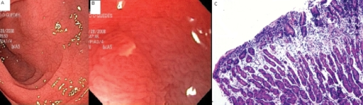 (A) Endoscopic image: Loss of duodenal folds. (B) Mucosa (100× magnification): villous atrophy, microhemorrhage with multiple erosions. (C) Histology: total villous atrophy, Marsh 3C (1).