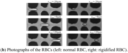(a) Relationship between the normalized resistance distribution ΔRx/ΔR0 against the streamwise position of RBC, xRBC, for normal RBC, rigidified RBC and spherocyte; (b) photographs of normal and rigidified RBCs passing between the electrodes.