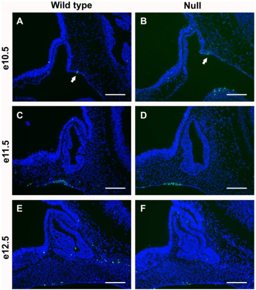 Apoptosis is not different in Foxd1LacZ/LacZ embryos.TUNEL was performed to label apoptotic cells in mid-sagittal sections from Foxd1LacZ/LacZ embryos and wild type littermates. (A–F) No loss of apoptosis was observed. (A–B) Arrows indicate regions of pituitary cell apoptosis. Pictures were taken at 200X and scale bars represent 100 µm.