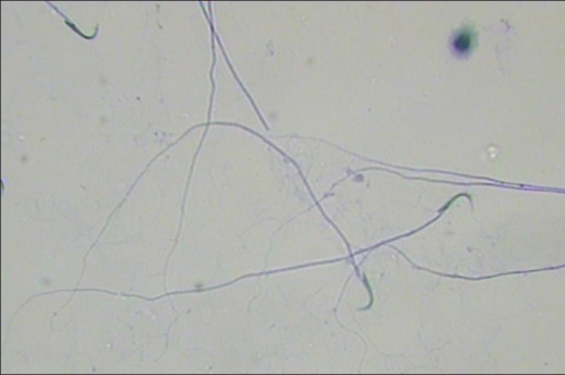 Papanicolaou staining of sperm cells of the group treated with 30 mg lithium carbonate under a light microscope with magnification of ×40 showed abnormal curling tails with abnormal sperms, which was more than that of 10 mg and 20 mg doses, and the least sperm density was observed using 30 mg dose