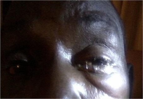 Showing mucopurulent discharge, swollen lids and mechanical ptosis