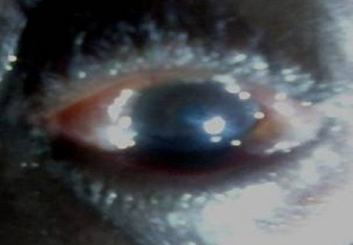 Conjunctival chemosis seen through the inter palpebral fissure
