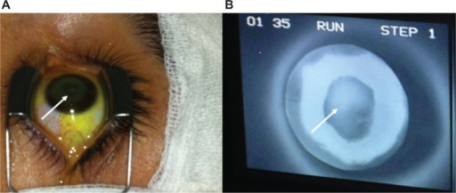 Epithelial island cross-linking technique for thin ectatic corneas.Notes: Epithelial island (A) white arrow; and (B) white arrow indicating epithelial island during ultra violet-A exposure; the shield effect provided by epithelium in situ is well evident reducing the typical fluorescence of activated riboflavin by the UV-A illumination.Abbreviation: UV-A, ultra violet-A.