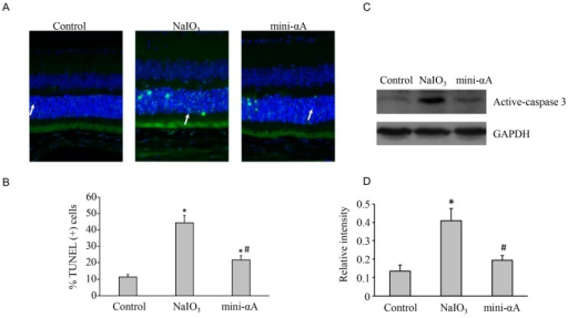 TUNEL assay was performed 3 days after the establishment of the mouse model of NaIO3-induced retinal degeneration. (A) Almost no TUNEL-positive cells were detected in normal control group; a large number of TUNEL-positive cells were found in the external nuclear layer in the retinas of NaIO3 group (white arrow); several TUNEL-positive cells were observed in the external nuclear layer in mini-αA group (white arrow), but much less than those observed in NaIO3 group. Magnification: 400×; (B) Quantification of dead cells by TUNEL assay from at least five independent experiments. TUNEL-positive cells were counted and data were expressed as percent of total death cells; (C) Western blot analysis of caspase expression levels in each subgroup; (D) Quantification of band intensity of caspase from three independent experiments on (C). * p < 0.05 vs. Control; # p <0.05 vs. NaIO3.