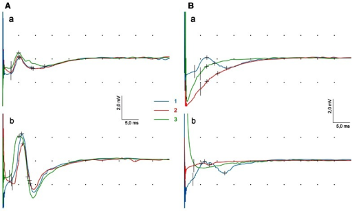 Changes of CMAPs parameters at three periods of observation (1st blue line, 2nd red line, 3rd green line) recorded from frontal (a) and orbicularis oris (b) muscles in one of patients with benign (A) and malignant (B) tumors