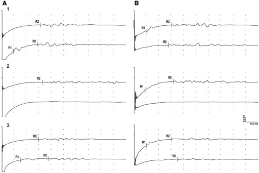 Examples of blink-reflex recordings from symptomatic (A) and asymptomatic (B) side in one of patients with benign tumor at three (1–3) periods of observation