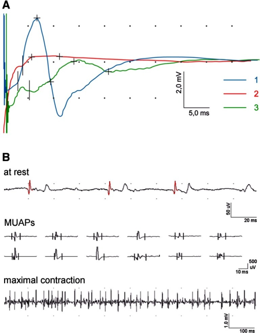 Examples of CMAP recordings: A at three periods of observation (1st blue line, 2nd red line, 3rd green line) and B needle EMG recordings from orbicularis oris muscle in one of patients with benign tumor proving the regeneration and reinnervation processes