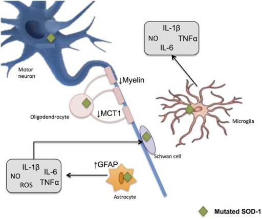 Glial-induced neuroinflammation and neurotoxicity in amyotrophic lateral sclerosis (ALS). Reactive astrocytes contribute to the degenerative process by influencing the activity of microglial and immune cells. An up-regulation of filament glial fibrillary acidic protein (GFAP) takes place and astrocytes increase the release of proinflammatory markers including NO and ROS. When mutated SOD1 accumulates within microglia, the later generates substances potentially harmful to other cells, thus potentiating neurotoxicity. Demyelinization and progressive loss of cholesterol is also observed after oligodendrocyte damage. These glial cells show a reduction in the monocarboxylate transporter 1 (MCT1), which in turn difficult the energy supplies to the neuron.