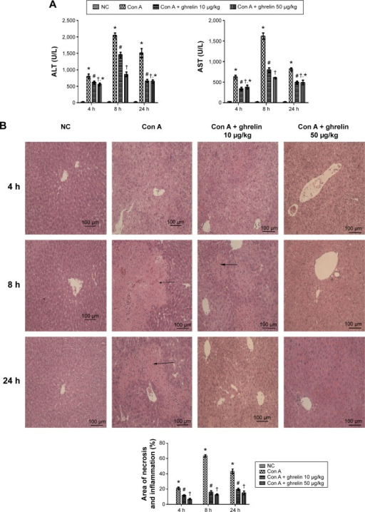 Ghrelin pretreatment ameliorates Con A-induced hepatitis.Notes: (A) Serum ALT and AST levels are expressed as the mean ± SD of six animals per group at 4, 8, and 24 h after Con A injection in mice and the effects of both low (10 μg/kg) and high (50 μg/kg) dose ghrelin pretreatment at the same time. (B) Hematoxylin and eosin staining of liver sections. The cellular necrotic or edematous areas were analyzed with Image-Pro® Plus (v 6.0); (n=6). *P<0.05 for NC vs Con A, #P<0.05 for Con A vs Con A + 10 μg/kg ghrelin, †P<0.05 for Con A + 50 μg/kg ghrelin vs Con A + 10 μg/kg ghrelin, and †,*P>0.05 for Con A + 50 μg/kg ghrelin vs Con A + 10 μg/kg ghrelin.Abbreviations: ALT, alanine aminotransferase; AST, aspartate aminotransferase; Con, concanavalin; h, hours; NC, normal control.