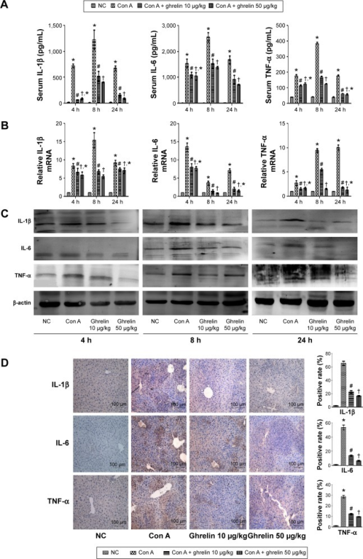 Ghrelin pretreatment inhibits release of IL-1β, IL-6, and TNF-α in Con A-induced hepatitis.Notes: (A) The serum IL-1β, IL-6, and TNF-α levels are expressed as mean ± SD of six animals per group at 4, 8, and 24 h after Con A injection in mice and the effects of both low (10 μg/kg) and high (50 μg/kg) dose ghrelin pretreatment at the same time. (B) mRNA expression of IL-1β, IL-6, and TNF-α in the NC, Con A, Con A + 10 μg/kg ghrelin, and Con A + 50 μg/kg ghrelin groups was evaluated by real-time PCR. (C) Western blots showing the expression of IL-1β, IL-6, and TNF-α in liver tissues. (D) Immunohistochemistry staining (200×) showing the expression of IL-1β, IL-6, and TNF-α in liver tissue at 8 h. The ratio of brown area to total area was analyzed with Image-Pro® Plus (v 6.0); (n=6). *P<0.05 for NC vs Con A, #P<0.05 for Con A vs Con A + 10 μg/kg ghrelin, †P<0.05 for Con A + 50 μg/kg ghrelin vs Con A + 10 μg/kg ghrelin, and †,*P>0.05 for Con A + 50 μg/kg ghrelin vs Con A + 10 μg/kg ghrelin.Abbreviations: Con, concanavalin; h, hours; IL, interleukin; NC, normal control; TNF, tumor necrosis factor; PCR, polymerase chain reaction.