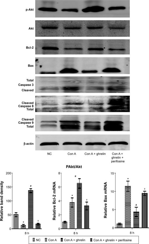 The protective effect of ghrelin could be interrupted by Akt kinase inhibitor.Notes: Western blotting of expression of p-Akt; Bcl-2; Bax; and caspase 3, 8, and 9 in liver tissues. Real-time PCR evaluation of expression of Bcl-2 and Bax, and density quantification of p-Akt. *P<0.05 for NC vs Con A, #P<0.05 for Con A vs Con A + 10 μg/kg ghrelin, and †P<0.05 for Con A + 10 μg/kg ghrelin + perifosine vs Con A + 10 μg/kg ghrelin.Abbreviations: Con, concanavalin; p-Akt, phosphorylated Akt; NC, normal control; PCR, polymerase chain reaction.