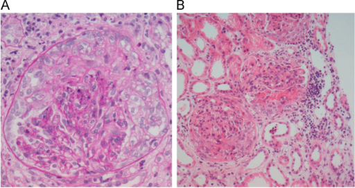 Renal biopsy findings. (A) Histologic examination of a renal biopsy specimen reveals that the glomerulus has a severe crescent formation. (B) There are loop necrosis and fibrin deposition in the glomerular tufts. The tubules reveal focal moderate atrophy and loss with infiltration of mononuclear cells in edematous interstitium. Blood vessels are unremarkable. [Periodic acid-Schiff stain: (A) 400× and (B) 200×].
