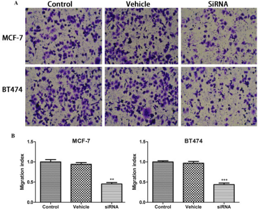 (A) Cyclin-dependent kinase inhibitor 3 silencing decreased cell migration in MCF-7 and BT474 cells. Magnification, ×10. (B) Migration index was measured. Data are presented as the mean ± standard deviation. **P<0.01; ***P<0.001 compared with the control group. siRNA, small interfering RNA.
