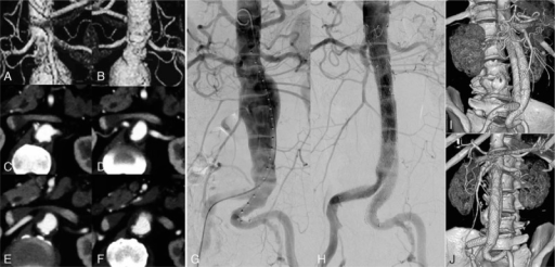 Preoperative CTA reconstruction (A, B) revealed an abdominal aortic aneurysm with hostile neck anatomy. Continuous cross-section scanning (C–F) revealed an aneurismal neck mural thrombus covering 50% of the circumference and an imminent rupture of the aneurysm in the aneurismal neck area (F). Intraoperative DSA (G, H) revealed that the abdominal aortic aneurysm was well repaired with a fenestrated stent graft. The 3 target arterial branches were reconstructed using a balloon-expandable stent (Scuba, InvatecS.r.l., Italy) for the superior mesenteric artery, and 2 stent grafts (Viabahn; W.L. Gore & Associates, Inc., Flagstaff, AZ) were used for the reconstruction of the bilateral renal arteries. The CTA follow-up at 6 months after surgery (I, J) showed smooth flow in the target arteries, with no aneurysm endoleaks. CTA = computed tomographic angiography, DSA = digital subtraction angiography.