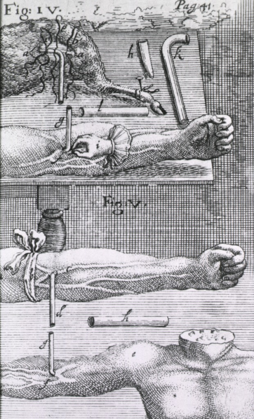 <p>Two views of blood transfusions: an animal and a human arm are on one table, the necessary tubular attachments for making the connections are shown extending from the arm and the animal's side; the second view is of two arms with tubes as above.</p>