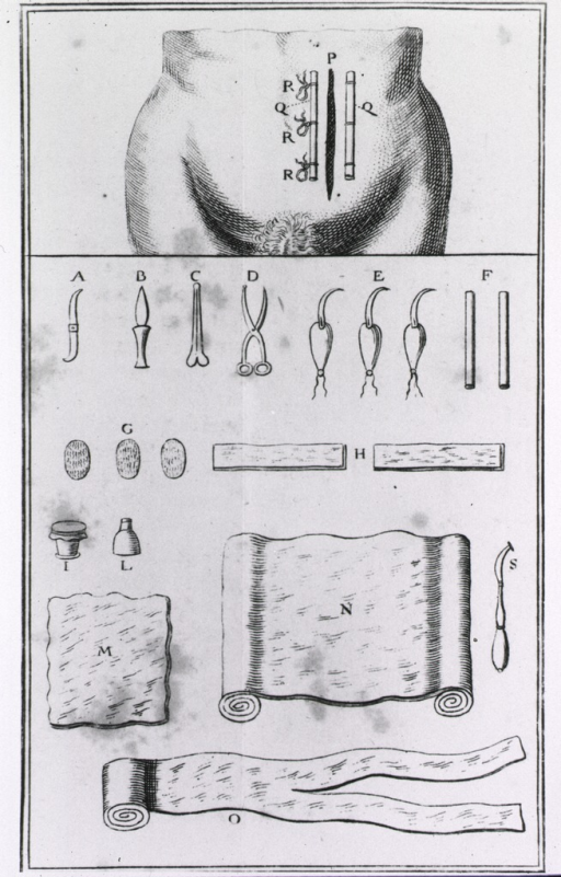 <p>The place and length as well as the method of closing the incision is indicated on the abdomen; also shown are instruments and bandages used in the procedure.</p>