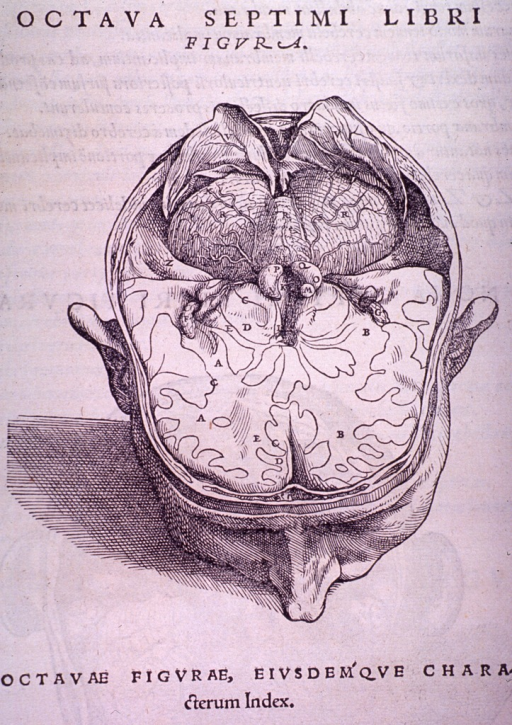 <p>A further dissection of the cerebellum displayed.</p>